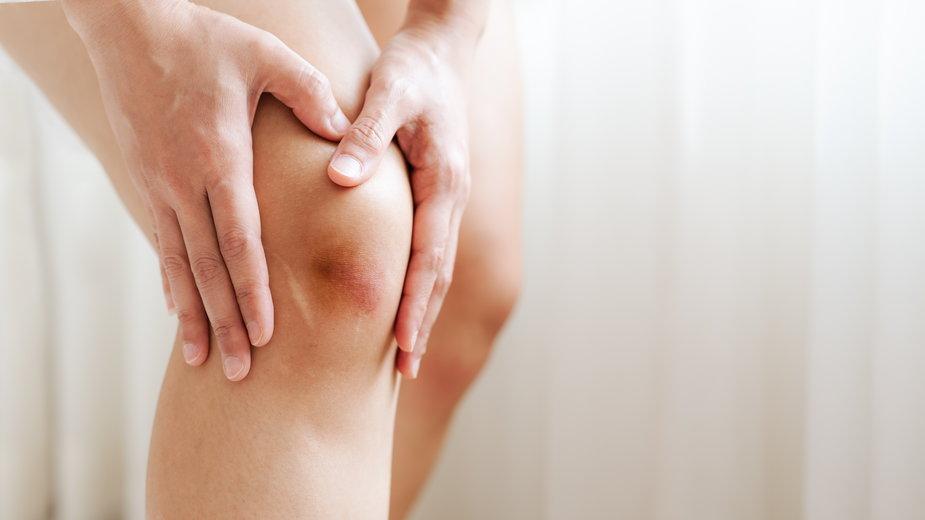 Stłuczenia można leczyć domowymi sposobami - PORNCHAI SODA/stock.adobe.com