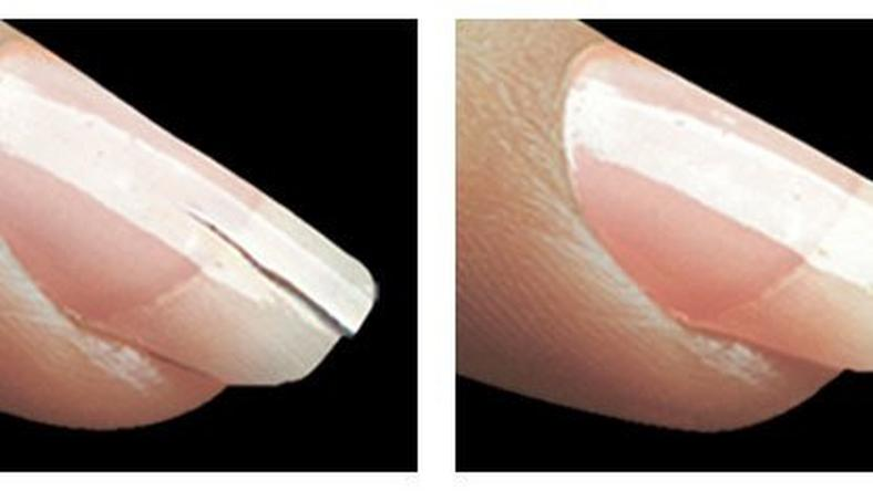 Broken/cracked nails are common but they can be fixed