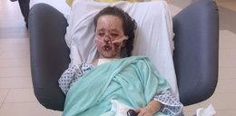 10-latka omal nie umarła przez tabletkę przeciwbólową. Jej ciało płonęło od środka