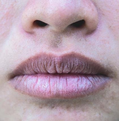 Das verraten Ihre Lippen über Ihre Gesundheit