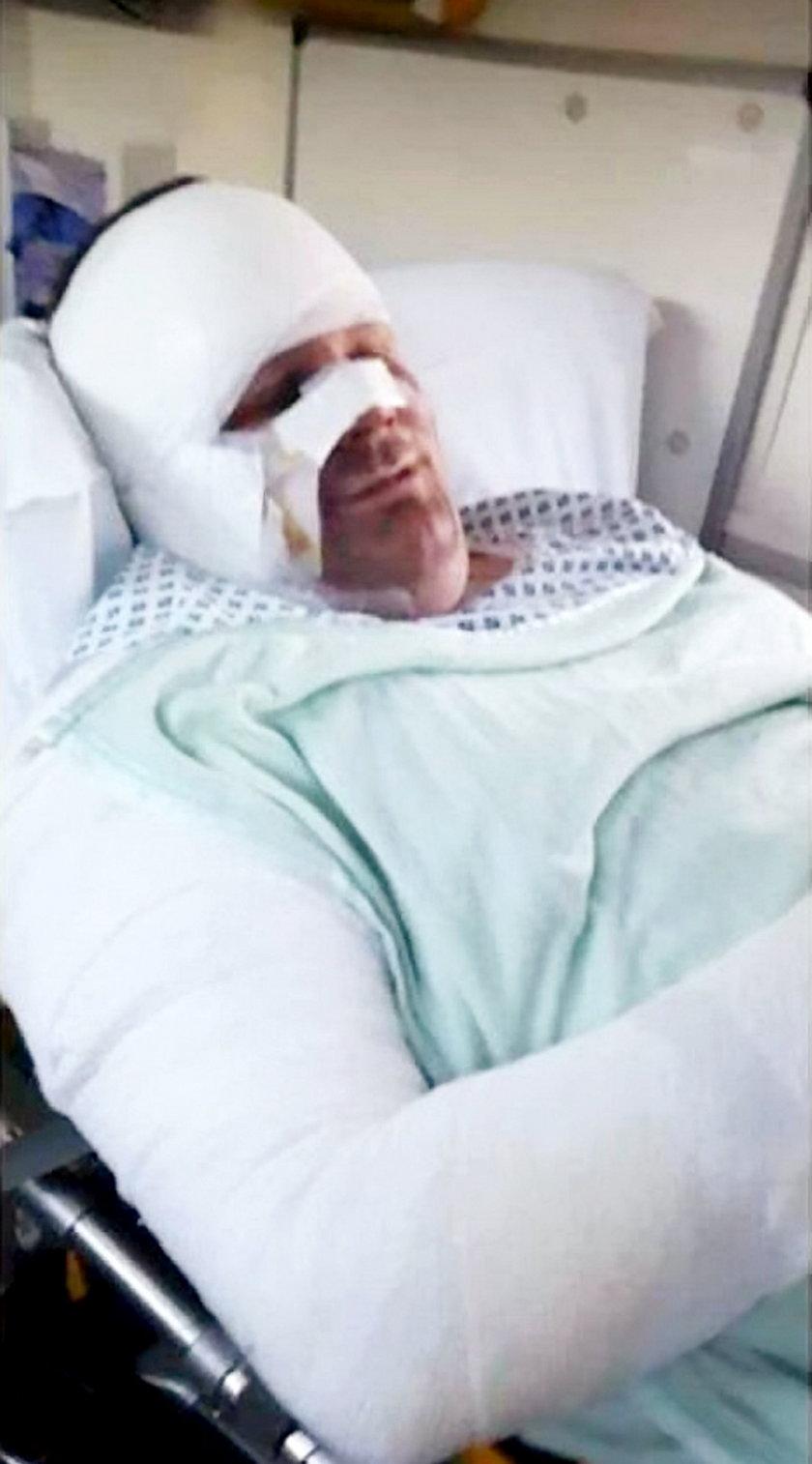 Trafił do szpitala po tym, jak jego e-papieros wybuchł