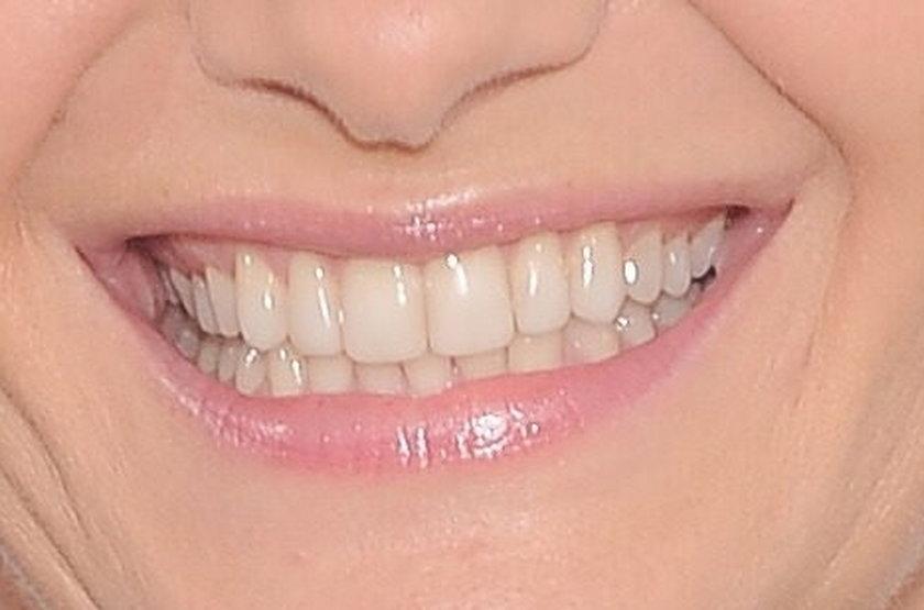 Zdrowe zęby Małgorzaty Kożuchowskiej