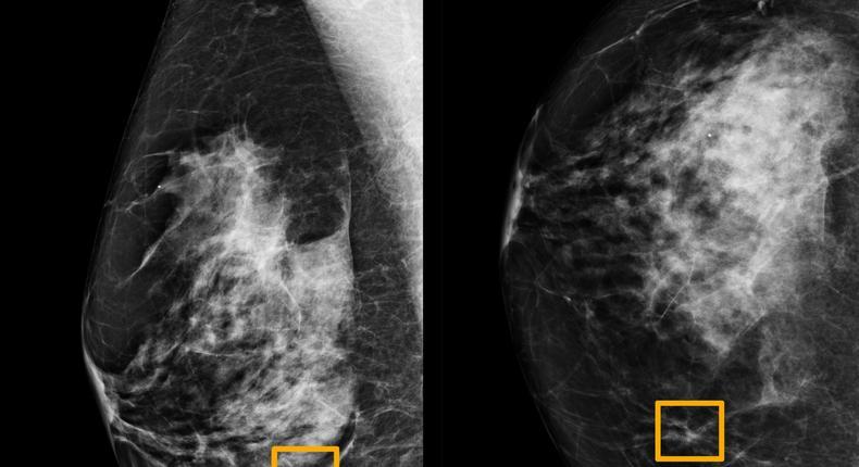 DeepMind mammogram