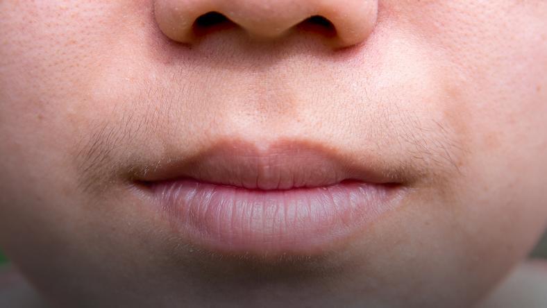 Co może oznaczać wąsik nad górną wargą?