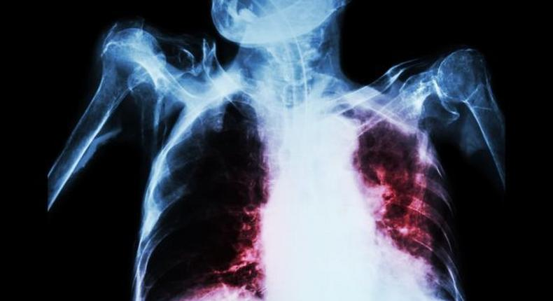 TB can affect the lungs