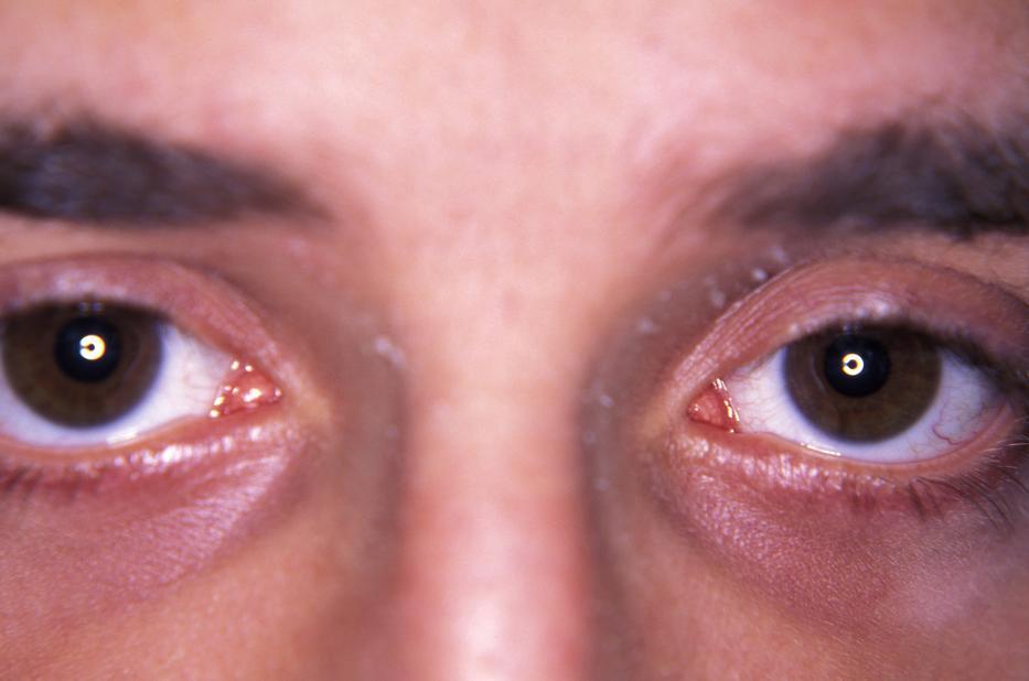 mi a látás kevesebb 0 7 látásvesztése van