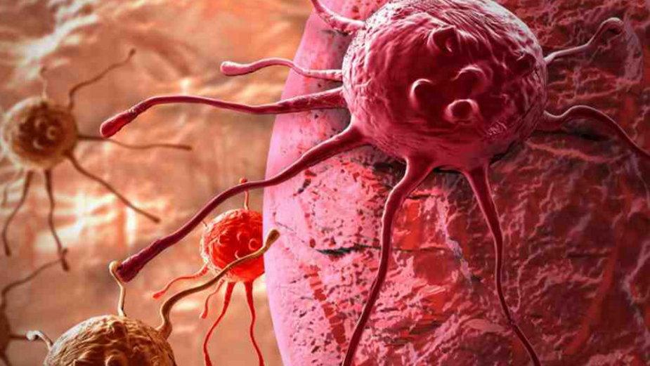 Odkryto wspólną cechę łączącą wszystkie nowotwory