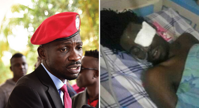 Bobi Wine's man succumbs to injuries after horrible torture