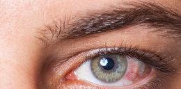 Przekrwione oczy? To przez reumatyzm!