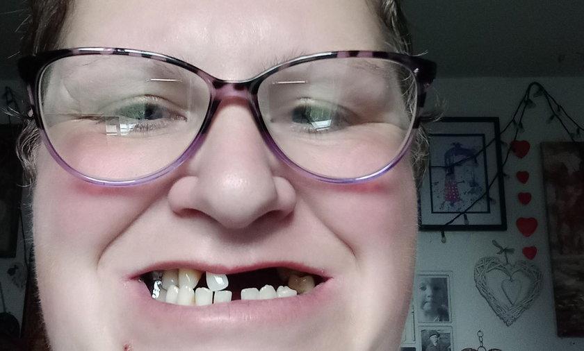 Wyrwała sobie 11 zębów, bo nie mogła się dostać do dentysty
