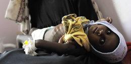 Przerażające! Dzieci umierają z głodu, a wystarczyłby mały gest...