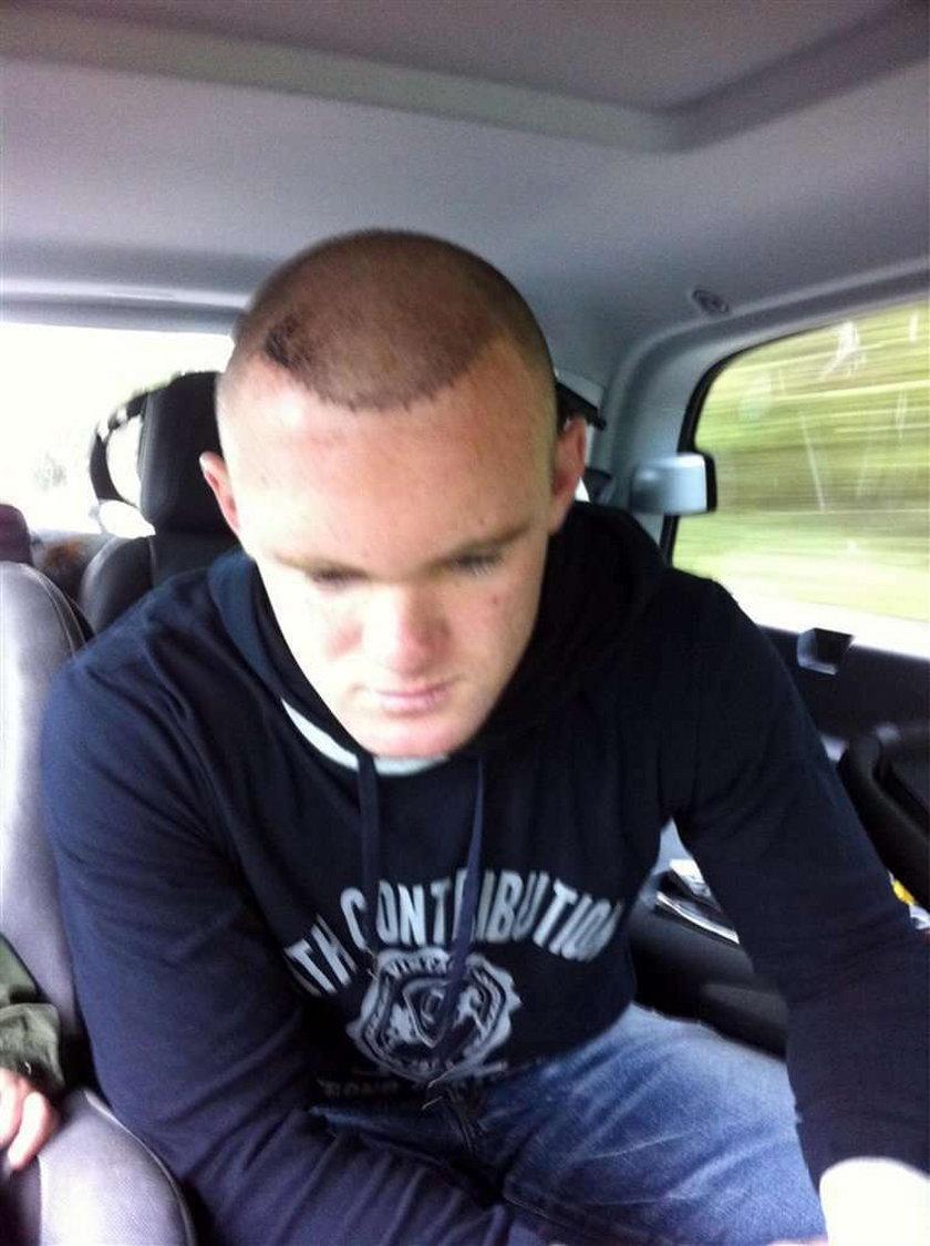 Gwiazdor piłki przeszczepił sobie włosy
