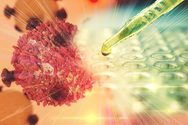 Limfóma tünetei és kezelése A nyirokrák diagnózisa