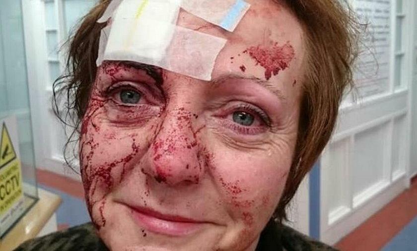 50-latka brutalnie pobita w urodziny. Wstrząsające zdjęcia!