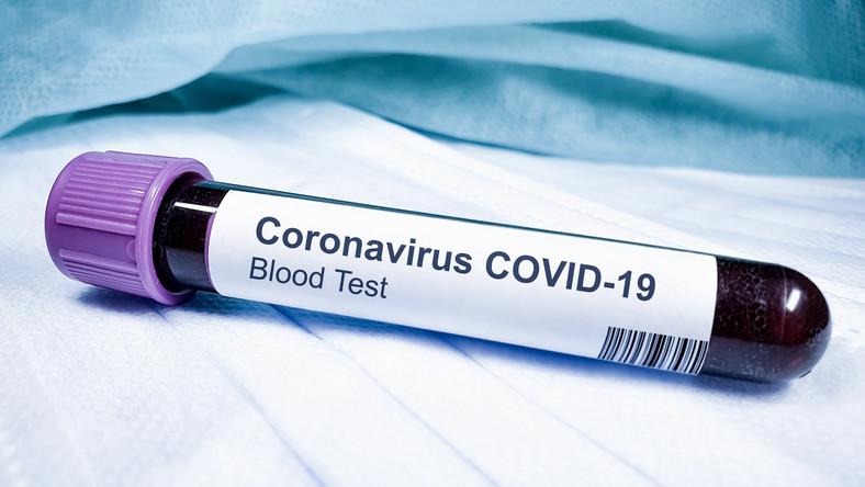 Test na koronawirusa, Covid-19