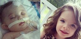 Skatowana przez ojca 4-latka straciła pół mózgu