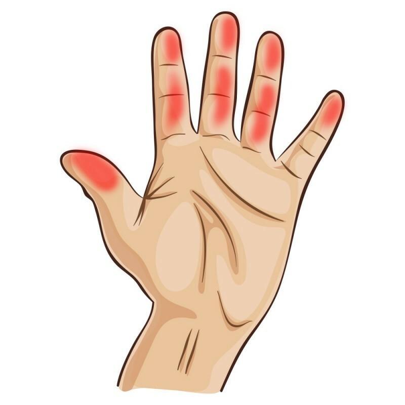 térdízületi fájdalom okozza a kezelést hogyan használható a csicsóka az együttes kezeléshez