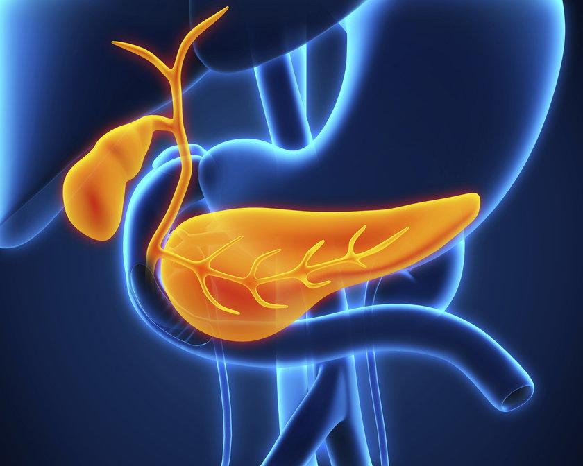 Objawy raka trzustki