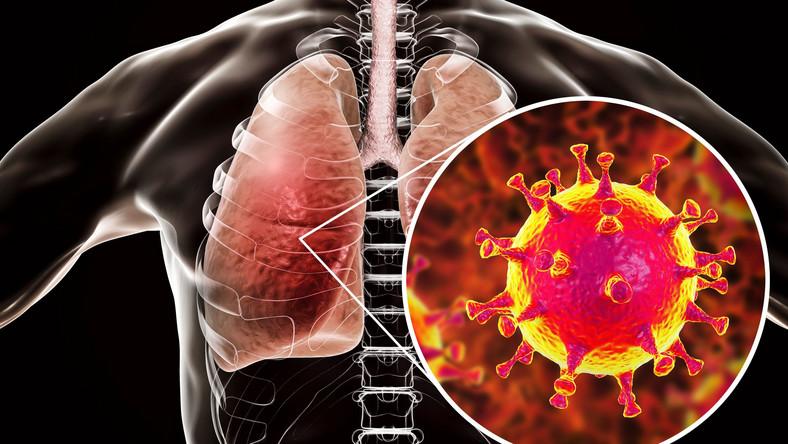 Wirus atakujący płuca