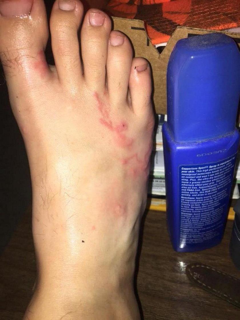 Matka ostrzega rodziców: to stało się ze stopą jej dziecka po spacerze na plaży