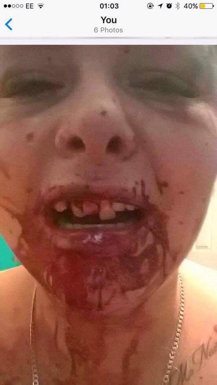 Zmieniła zdjęcie na Facebooku, to zrobił jej zazdrosny chłopak