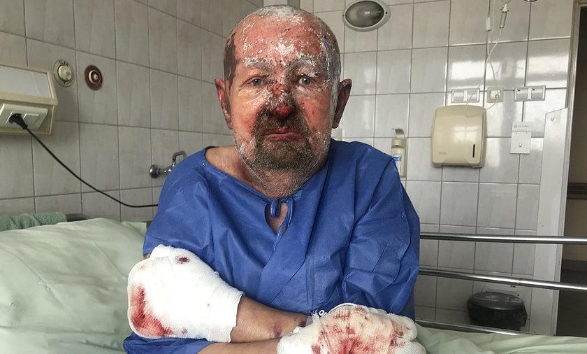 Pan Tadeusz cudem przeżył wybuch gazu w swoim domu