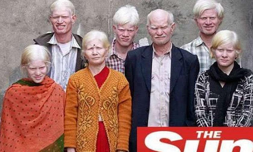 Dramat rodziny hindusów-albinosów, nie mogą...