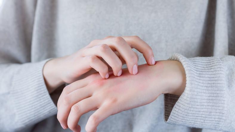 Kobieta z atopowym zapaleniem skóry