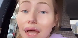 """Agata Rubik zrobiła sobie usta? """"Dobrze, że kliniki medycyny estetycznej wciąż otwarte!"""""""