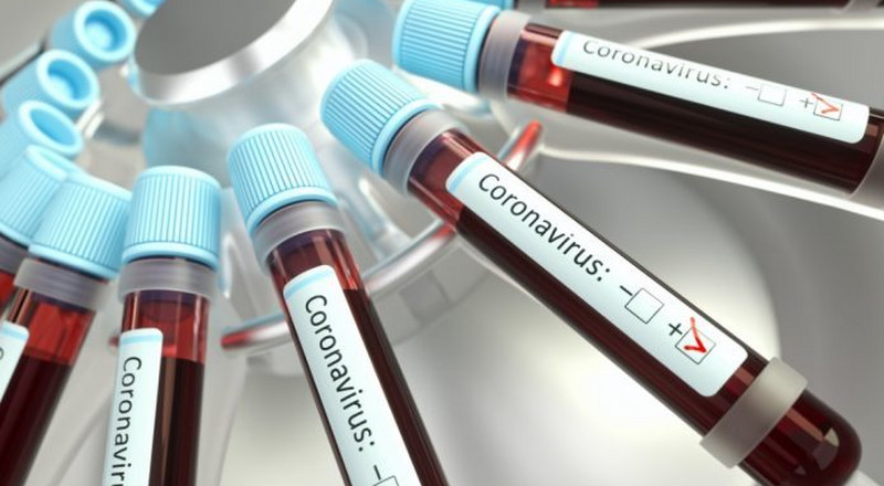 Kano records first case of  coronavirus