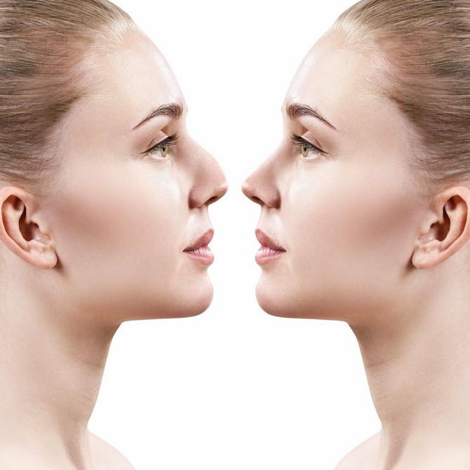 """Saznali smo kako do """"novog"""" nosa bez operacija"""