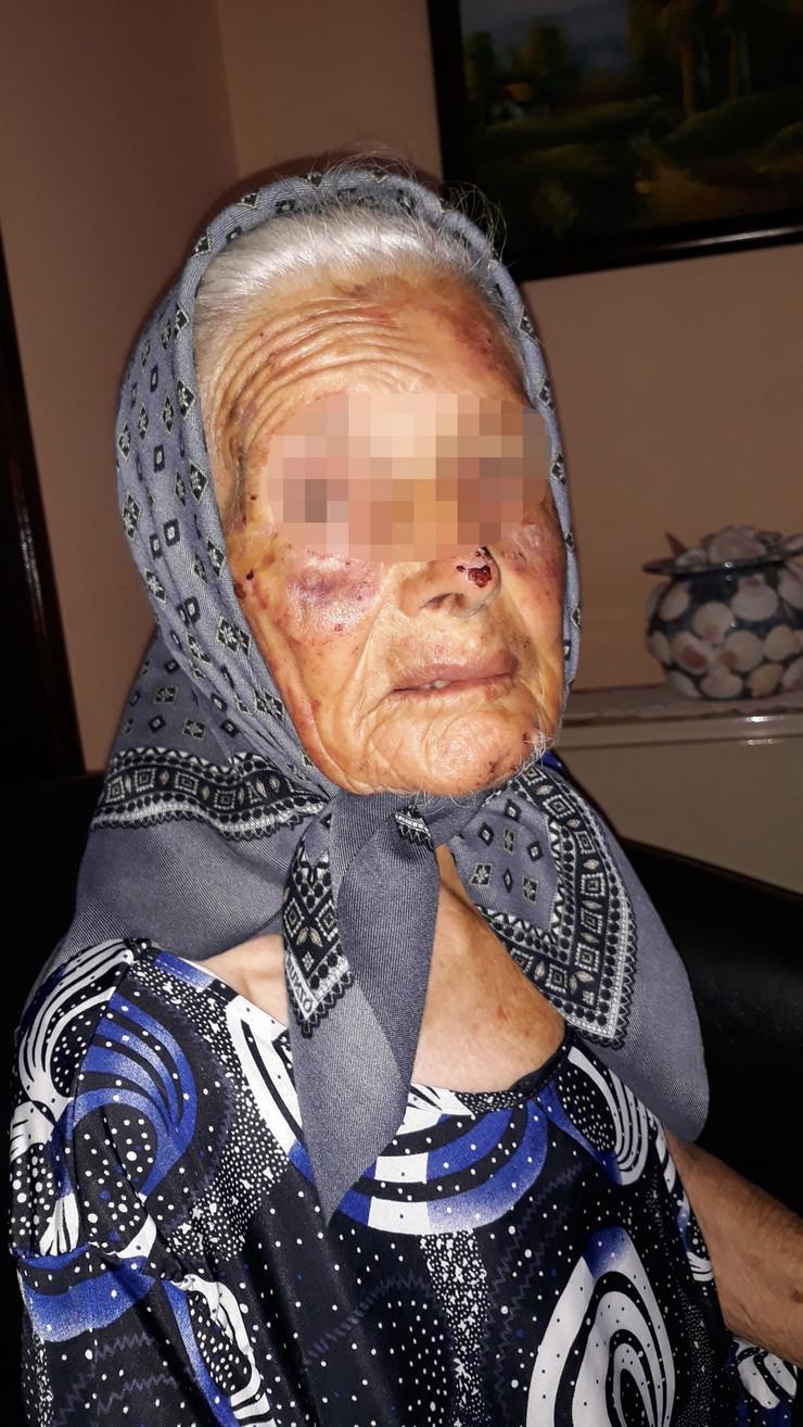 NIS11 Starica Radojka S koju je pretukao i silovao razbojnik ima vidljive povrede po licu foto Branko Janackovic