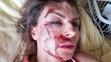 Zmasakrowana Beata Wiater szuka sprawcy wypadku