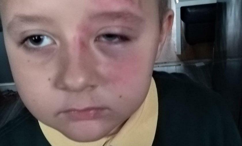 """7-latek z Polski brutalnie pobity w szkole. """"Za to tylko, że jest Polakiem"""""""
