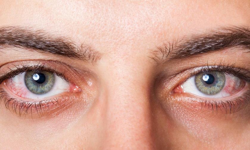 Codzienne nawyki uszkadzają nasze oczy