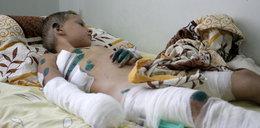 Rosjanie atakują Ukrainę. Ofiary wśród cywili
