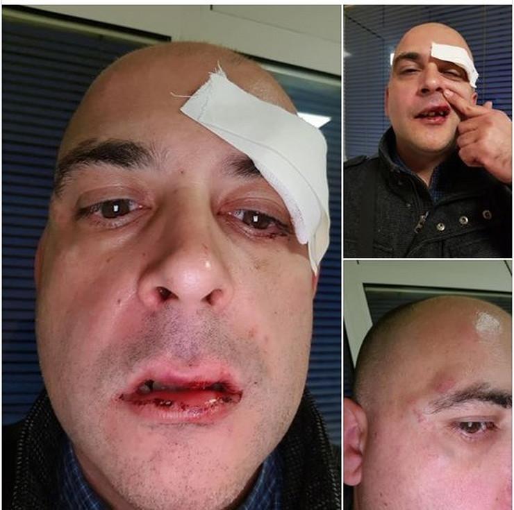 pretucen foto Screenshot Facebook Ilija Vučević