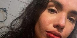 Gwiazda Instagrama musiała kryć się przed oprawcą w łazience i błagać fanów o pomoc