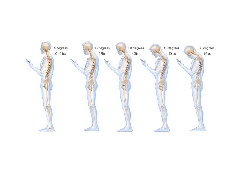 Texting_and_Mobile_Usage_Does_to_Your_Spine
