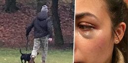Awantura na spacerze. Słynny polski raper uderzył w twarz kobietę?! Jest oświadczenie rapera