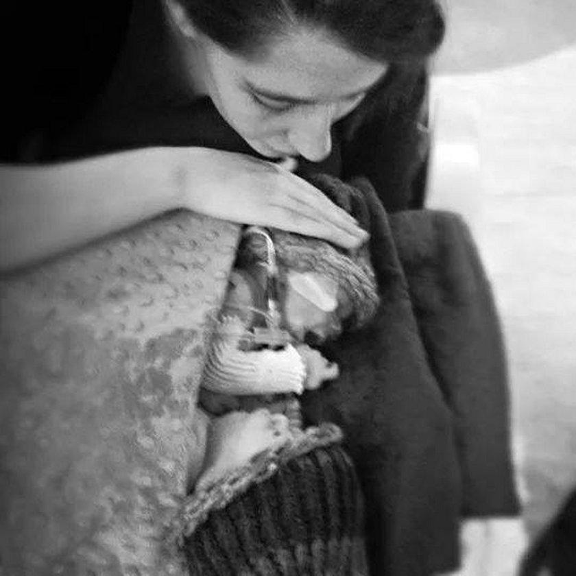Dramat matki syjamskich braci: Drży o ich życie