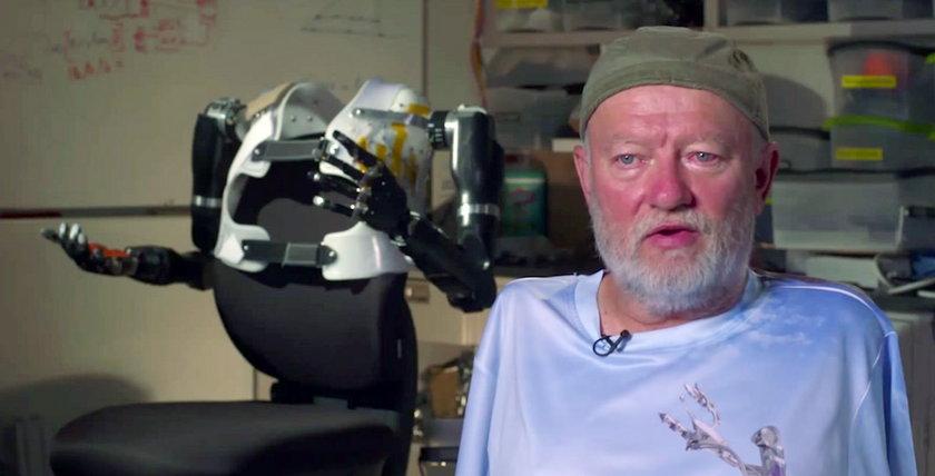 40 lat nie miał rąk. Teraz rusza protezami w myślach