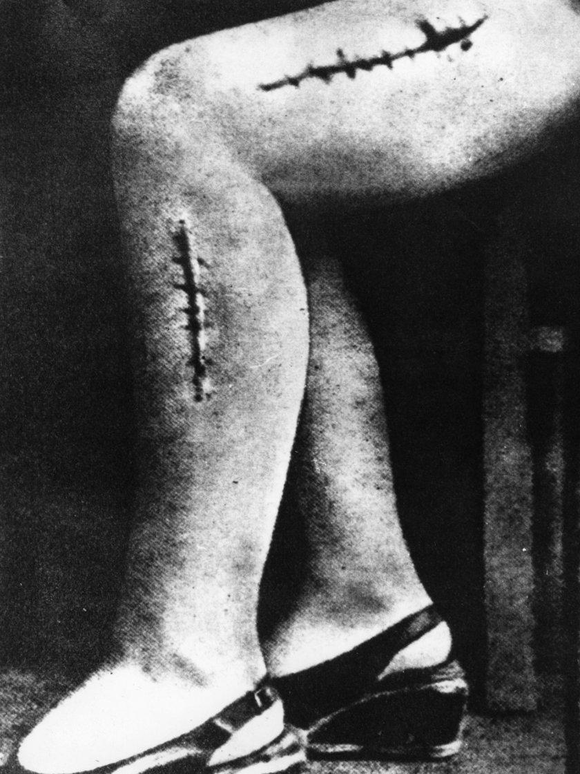 Na kobietach w Auschwitz dokonywano zbrodniczych eksperymentów