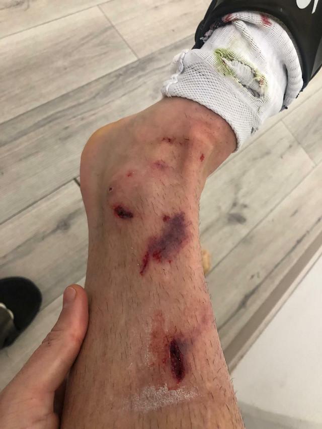 Povređena noga Dijega Falćinelija