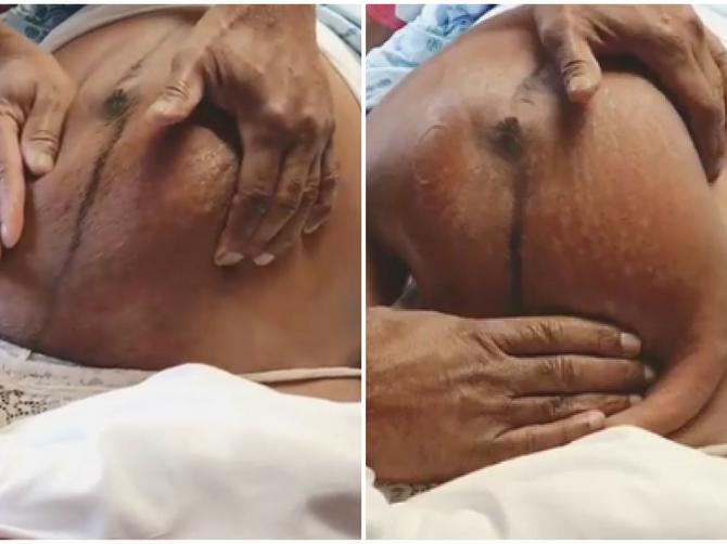 U 38. nedelji trudnoće je otišla na ultrazvuk: Čim je lekar video sliku, predložio je carki rez - ODBILA JE i usledio je OVAJ SNIMAK o kome bruji internet