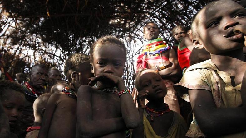 Po klęsce głodu w Somalii wybuchła epidemia cholery
