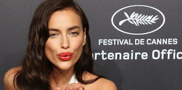 Irina Shayk i operacje plastyczne? Szczere wyznanie modelki