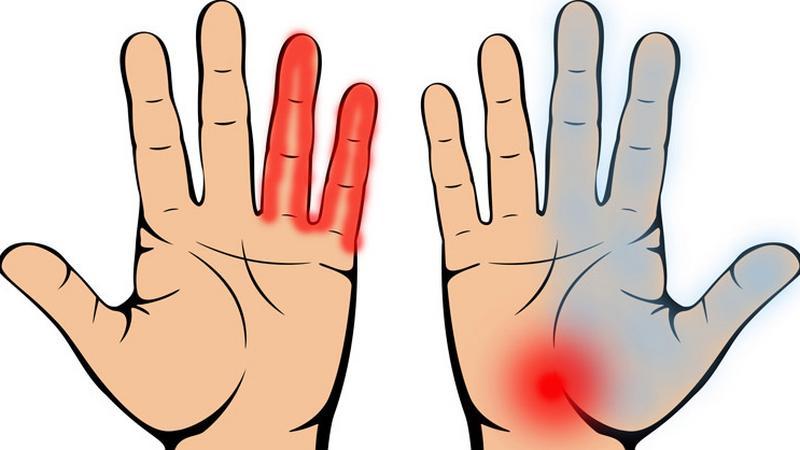 csuklófájdalom és az ujjak zsibbadása artrózis juharlevél kezelés