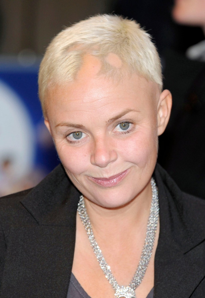 Gejl Porter je zbog stresa obolela od alopecije