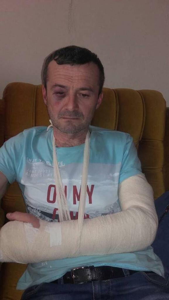Samir Kozica pretučen je oko 3:30 na železničkoj stanici u Prijepolju